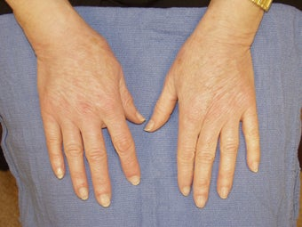 Hand Rejuvenation with Radiesse after 263196