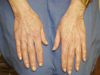 Hand Rejuvenation with Radiesse before 263196