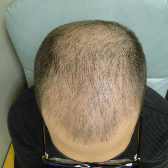 25-34 year old man treated with PRP for Hair Loss before 2732152