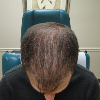 25-34 year old man treated with PRP for Hair Loss after 2732152