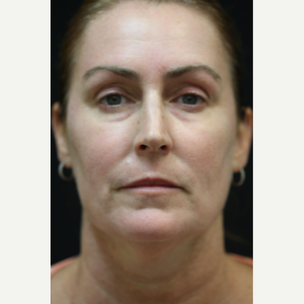 45-54 year old woman treated with Laser Treatment after 2875132