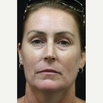 45-54 year old woman treated with Laser Treatment before 2875132