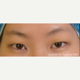 18-24 year old woman treated with Asian Eyelid Surgery before 3591328