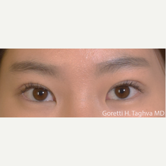 18-24 year old woman treated with Asian Eyelid Surgery after 3591328