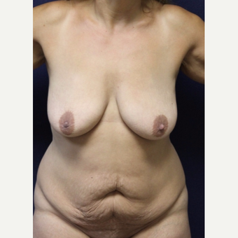 45-54 year old woman treated with Mommy Makeover before 3519806