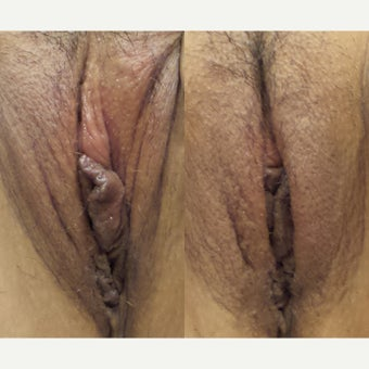 25-34 year old woman treated with Labiaplasty before 1946316