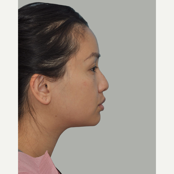 25-34 year old woman treated with Asian Rhinoplasty before 3524660