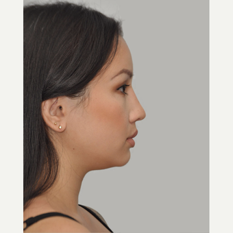 25-34 year old woman treated with Asian Rhinoplasty after 3524660