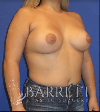25-34 year old woman treated with Breast Implants 3584129