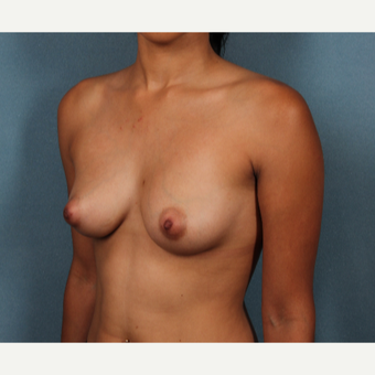 18-24 year old woman treated with Breast Augmentation before 3253741
