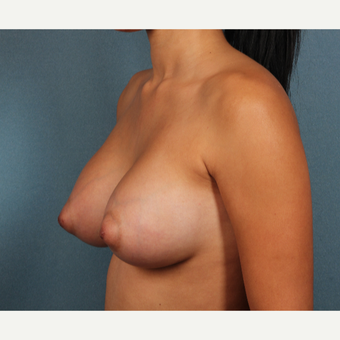 18-24 year old woman treated with Breast Augmentation after 3253741