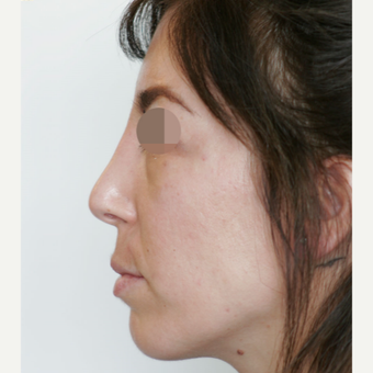 25-34 year old woman treated with Rhinoplasty after 3801366