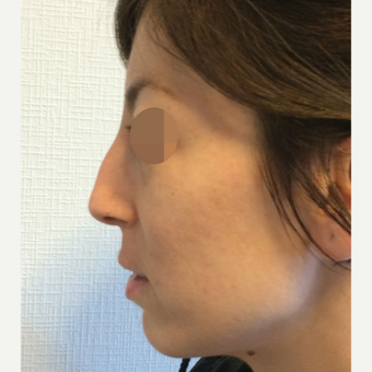 25-34 year old woman treated with Rhinoplasty before 3801366