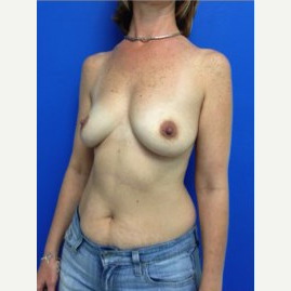 Breast Augmentation before 3743724