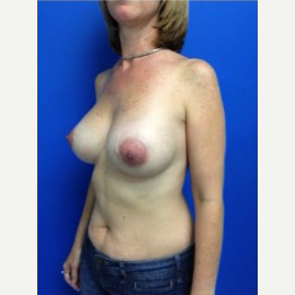 Breast Augmentation after 3743724