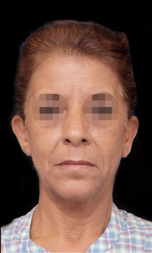 35-44 year old woman treated with Facelift before 3270009