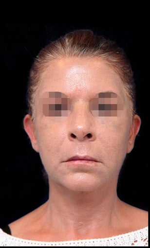 35-44 year old woman treated with Facelift after 3270009