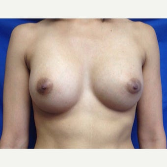 25-34 year old woman treated with Breast Augmentation after 2406575