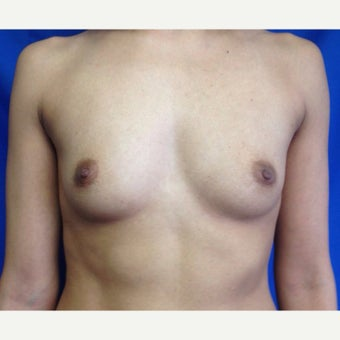 25-34 year old woman treated with Breast Augmentation before 2406575