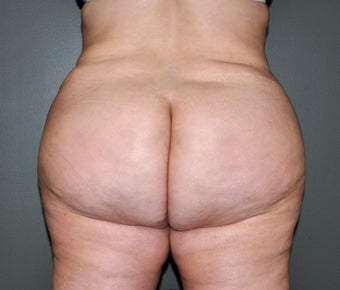 35 Year Old Female Who Desired Larger Buttocks after 1327899