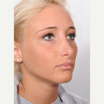 Rhinoplasty after 2595756