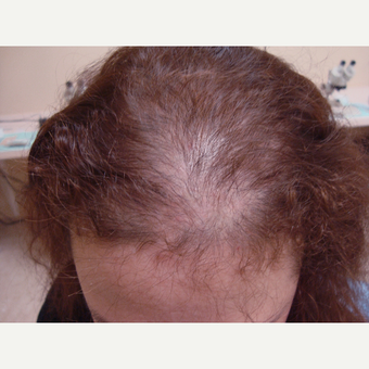 45-54 year old woman treated with FUE Hair Transplant before 3181437