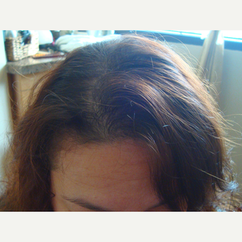 45-54 year old woman treated with FUE Hair Transplant after 3181437