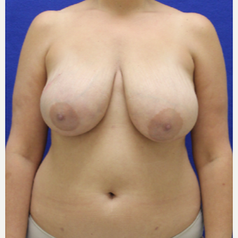 45-54 year old woman treated with Breast Lift before 3482501