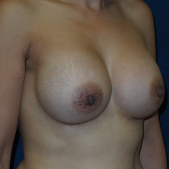 45-54 year old woman treated with Ideal Implant after 3413170