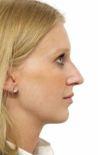 25-34 year old woman treated with Rhinoplasty after 3066664