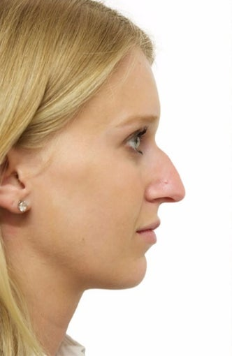 25-34 year old woman treated with Rhinoplasty before 3066664