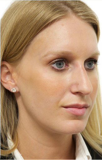 25-34 year old woman treated with Rhinoplasty 3066664