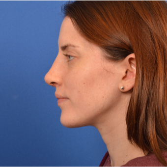 Revision Rhinoplasty after 3220607