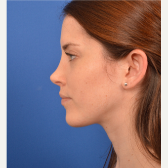 Revision Rhinoplasty before 3220607