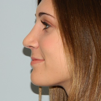 35-44 year old woman treated with Rhinoplasty after 3506077