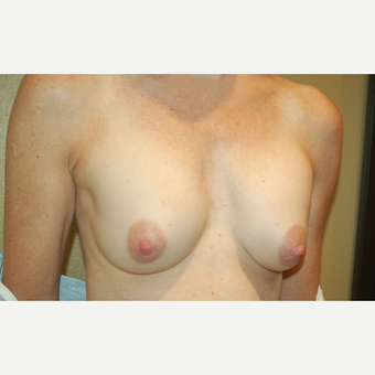 55-64 year old woman treated with Breast Implant Revision before 3798864