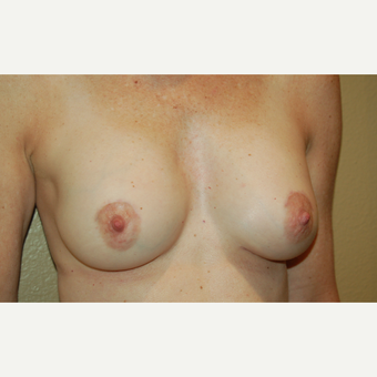 55-64 year old woman treated with Breast Implant Revision after 3798864