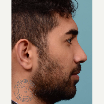 25-34 year old man treated with Rhinoplasty after 3092628