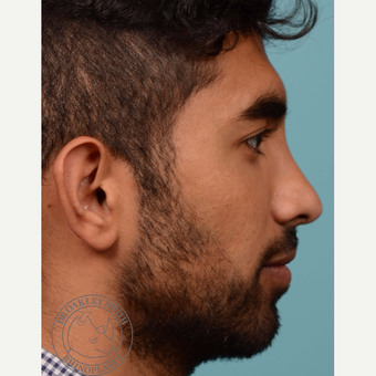 25-34 year old man treated with Rhinoplasty before 3092628