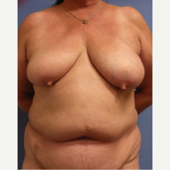 55-64 year old woman treated with Breast Reconstruction before 3644497