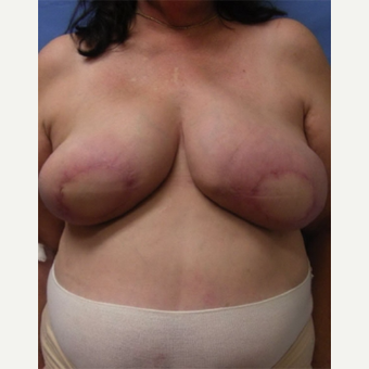 55-64 year old woman treated with Breast Reconstruction after 3644497
