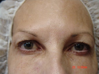 Ultherapy Eye Lift before 887267