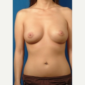 25-34 year old woman treated with Breast Augmentation after 3326814