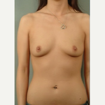 25-34 year old woman treated with Breast Augmentation before 3326814