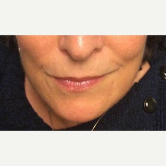 55-64 year old woman treated with Juvederm to lower face
