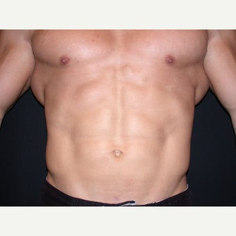 31 year old man treated with Liposuction of Abdomen and Flanks after 1808038