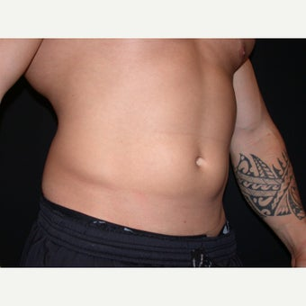 31 year old man treated with Liposuction of Abdomen and Flanks 1808038