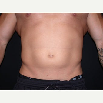 31 year old man treated with Liposuction of Abdomen and Flanks before 1808038