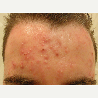 Acne can be treated with many methods. before 3710536