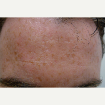 Acne can be treated with many methods. after 3710536